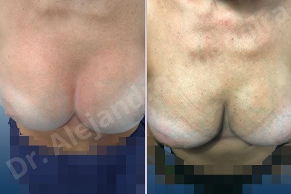 Pechos asimétricos,Tienda de escote de implantes mamarios,Malposición de implantes mamarios desplazados,Movimiento excesivo de implantes mamarios,Deslizamiento lateral de implantes mamarios,Ondulaciones o rippling de implantes mamarios,Implantes mamarios excesivamente laterales,Unimama por sinmastia de implantes mamarios,Visibilidad palpabilidad de implantes mamarios,Implantes mamarios bizcos,Pechos vacíos,Pechos levemente caídos descolgados,Pechos moderadamente caídos descolgados,Pechos pequeños,Implantes mamarios demasiado anchos,Efecto en cascada de agua de implantes mamarios,Pechos anchos,Forma anatómica,Capsulectomía,Capsulorrafia sujetador interno,Incisión hemiperiareolar inferior,Bolsillo en plano subfascial - photo 3