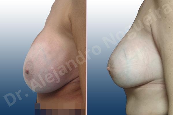 Pechos asimétricos,Tienda de escote de implantes mamarios,Malposición de implantes mamarios desplazados,Movimiento excesivo de implantes mamarios,Deslizamiento lateral de implantes mamarios,Ondulaciones o rippling de implantes mamarios,Implantes mamarios excesivamente laterales,Unimama por sinmastia de implantes mamarios,Visibilidad palpabilidad de implantes mamarios,Implantes mamarios bizcos,Pechos vacíos,Pechos levemente caídos descolgados,Pechos moderadamente caídos descolgados,Pechos pequeños,Implantes mamarios demasiado anchos,Efecto en cascada de agua de implantes mamarios,Pechos anchos,Forma anatómica,Capsulectomía,Capsulorrafia sujetador interno,Incisión hemiperiareolar inferior,Bolsillo en plano subfascial - photo 4