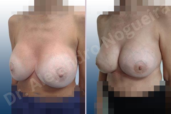 Pechos asimétricos,Tienda de escote de implantes mamarios,Malposición de implantes mamarios desplazados,Movimiento excesivo de implantes mamarios,Deslizamiento lateral de implantes mamarios,Ondulaciones o rippling de implantes mamarios,Implantes mamarios excesivamente laterales,Unimama por sinmastia de implantes mamarios,Visibilidad palpabilidad de implantes mamarios,Implantes mamarios bizcos,Pechos vacíos,Pechos levemente caídos descolgados,Pechos moderadamente caídos descolgados,Pechos pequeños,Implantes mamarios demasiado anchos,Efecto en cascada de agua de implantes mamarios,Pechos anchos,Forma anatómica,Capsulectomía,Capsulorrafia sujetador interno,Incisión hemiperiareolar inferior,Bolsillo en plano subfascial - photo 5