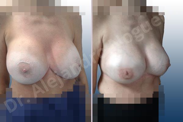 Pechos asimétricos,Tienda de escote de implantes mamarios,Malposición de implantes mamarios desplazados,Movimiento excesivo de implantes mamarios,Deslizamiento lateral de implantes mamarios,Ondulaciones o rippling de implantes mamarios,Implantes mamarios excesivamente laterales,Unimama por sinmastia de implantes mamarios,Visibilidad palpabilidad de implantes mamarios,Implantes mamarios bizcos,Pechos vacíos,Pechos levemente caídos descolgados,Pechos moderadamente caídos descolgados,Pechos pequeños,Implantes mamarios demasiado anchos,Efecto en cascada de agua de implantes mamarios,Pechos anchos,Forma anatómica,Capsulectomía,Capsulorrafia sujetador interno,Incisión hemiperiareolar inferior,Bolsillo en plano subfascial - photo 7
