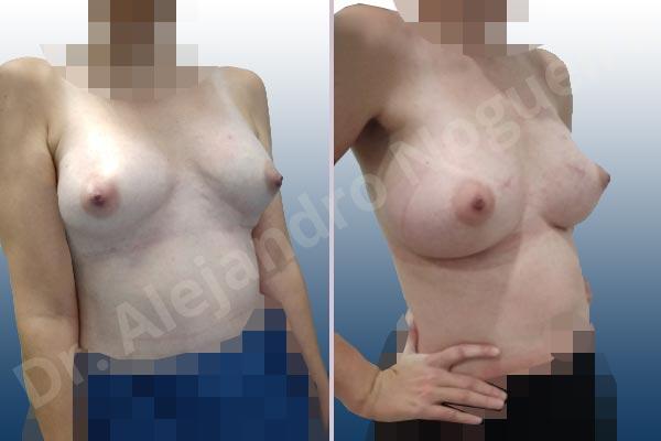 Pechos asimétricos,Deformidad en mama dinámica de implantes mamarios,Contractura capsular de implantes mamarios,Calcificación de la cápsula de los implantes mamarios,Tienda de escote de implantes mamarios,Malposición de implantes mamarios desplazados,Deformidad en doble burbuja de implantes mamarios,Movimiento excesivo de implantes mamarios,Deslizamiento lateral de implantes mamarios,Implantes mamarios excesivamente laterales,Unimama por sinmastia de implantes mamarios,Necrosis de tejidos de pechos,Pechos bizcos,Implantes mamarios bizcos,Cicatrices desplazadas malposicionadas,Pechos vacíos,Pechos laterales,Pechos estrechos,Tórax prominente,Pechos pequeños,Escote ancho de implantes de pechos excesivamente separados,Escote ancho de pechos excesivamente separados,Implantes mamarios demasiado anchos,Forma anatómica,Capsulectomía,Incisión a medida,Revisión escisional de cicatriz,Incisión submamaria,Bolsillo en plano subfascial - photo 10