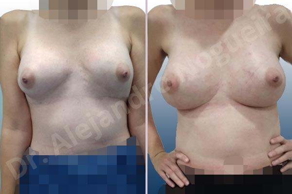 Pechos asimétricos,Deformidad en mama dinámica de implantes mamarios,Contractura capsular de implantes mamarios,Calcificación de la cápsula de los implantes mamarios,Tienda de escote de implantes mamarios,Malposición de implantes mamarios desplazados,Deformidad en doble burbuja de implantes mamarios,Movimiento excesivo de implantes mamarios,Deslizamiento lateral de implantes mamarios,Implantes mamarios excesivamente laterales,Unimama por sinmastia de implantes mamarios,Necrosis de tejidos de pechos,Pechos bizcos,Implantes mamarios bizcos,Cicatrices desplazadas malposicionadas,Pechos vacíos,Pechos laterales,Pechos estrechos,Tórax prominente,Pechos pequeños,Escote ancho de implantes de pechos excesivamente separados,Escote ancho de pechos excesivamente separados,Implantes mamarios demasiado anchos,Forma anatómica,Capsulectomía,Incisión a medida,Revisión escisional de cicatriz,Incisión submamaria,Bolsillo en plano subfascial - photo 2