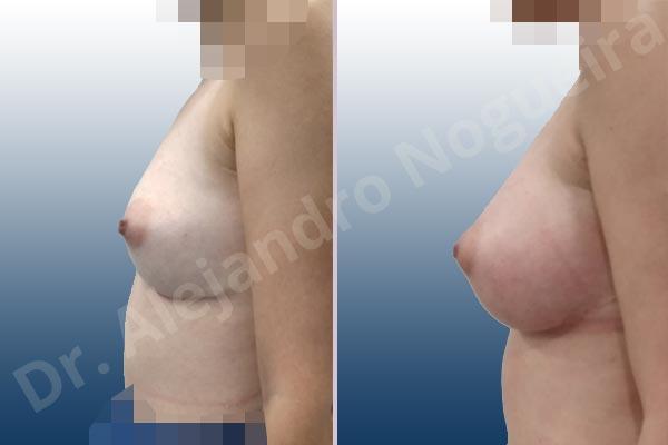 Pechos asimétricos,Deformidad en mama dinámica de implantes mamarios,Contractura capsular de implantes mamarios,Calcificación de la cápsula de los implantes mamarios,Tienda de escote de implantes mamarios,Malposición de implantes mamarios desplazados,Deformidad en doble burbuja de implantes mamarios,Movimiento excesivo de implantes mamarios,Deslizamiento lateral de implantes mamarios,Implantes mamarios excesivamente laterales,Unimama por sinmastia de implantes mamarios,Necrosis de tejidos de pechos,Pechos bizcos,Implantes mamarios bizcos,Cicatrices desplazadas malposicionadas,Pechos vacíos,Pechos laterales,Pechos estrechos,Tórax prominente,Pechos pequeños,Escote ancho de implantes de pechos excesivamente separados,Escote ancho de pechos excesivamente separados,Implantes mamarios demasiado anchos,Forma anatómica,Capsulectomía,Incisión a medida,Revisión escisional de cicatriz,Incisión submamaria,Bolsillo en plano subfascial - photo 3