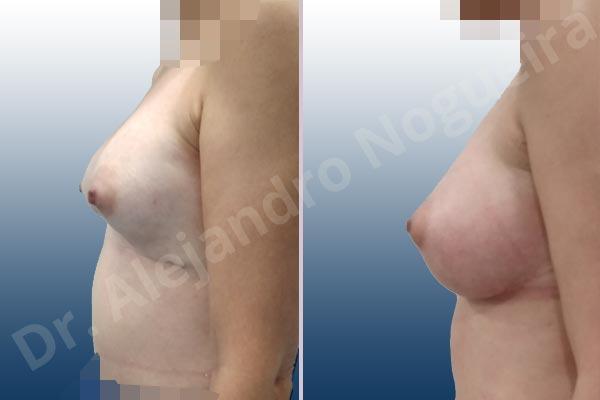 Pechos asimétricos,Deformidad en mama dinámica de implantes mamarios,Contractura capsular de implantes mamarios,Calcificación de la cápsula de los implantes mamarios,Tienda de escote de implantes mamarios,Malposición de implantes mamarios desplazados,Deformidad en doble burbuja de implantes mamarios,Movimiento excesivo de implantes mamarios,Deslizamiento lateral de implantes mamarios,Implantes mamarios excesivamente laterales,Unimama por sinmastia de implantes mamarios,Necrosis de tejidos de pechos,Pechos bizcos,Implantes mamarios bizcos,Cicatrices desplazadas malposicionadas,Pechos vacíos,Pechos laterales,Pechos estrechos,Tórax prominente,Pechos pequeños,Escote ancho de implantes de pechos excesivamente separados,Escote ancho de pechos excesivamente separados,Implantes mamarios demasiado anchos,Forma anatómica,Capsulectomía,Incisión a medida,Revisión escisional de cicatriz,Incisión submamaria,Bolsillo en plano subfascial - photo 4