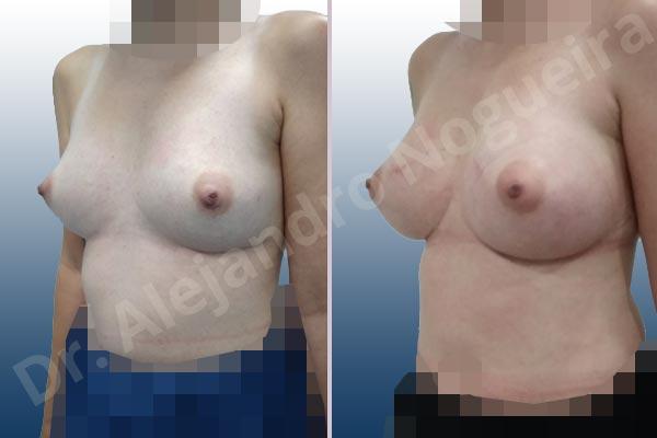 Pechos asimétricos,Deformidad en mama dinámica de implantes mamarios,Contractura capsular de implantes mamarios,Calcificación de la cápsula de los implantes mamarios,Tienda de escote de implantes mamarios,Malposición de implantes mamarios desplazados,Deformidad en doble burbuja de implantes mamarios,Movimiento excesivo de implantes mamarios,Deslizamiento lateral de implantes mamarios,Implantes mamarios excesivamente laterales,Unimama por sinmastia de implantes mamarios,Necrosis de tejidos de pechos,Pechos bizcos,Implantes mamarios bizcos,Cicatrices desplazadas malposicionadas,Pechos vacíos,Pechos laterales,Pechos estrechos,Tórax prominente,Pechos pequeños,Escote ancho de implantes de pechos excesivamente separados,Escote ancho de pechos excesivamente separados,Implantes mamarios demasiado anchos,Forma anatómica,Capsulectomía,Incisión a medida,Revisión escisional de cicatriz,Incisión submamaria,Bolsillo en plano subfascial - photo 5
