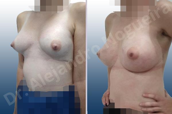 Pechos asimétricos,Deformidad en mama dinámica de implantes mamarios,Contractura capsular de implantes mamarios,Calcificación de la cápsula de los implantes mamarios,Tienda de escote de implantes mamarios,Malposición de implantes mamarios desplazados,Deformidad en doble burbuja de implantes mamarios,Movimiento excesivo de implantes mamarios,Deslizamiento lateral de implantes mamarios,Implantes mamarios excesivamente laterales,Unimama por sinmastia de implantes mamarios,Necrosis de tejidos de pechos,Pechos bizcos,Implantes mamarios bizcos,Cicatrices desplazadas malposicionadas,Pechos vacíos,Pechos laterales,Pechos estrechos,Tórax prominente,Pechos pequeños,Escote ancho de implantes de pechos excesivamente separados,Escote ancho de pechos excesivamente separados,Implantes mamarios demasiado anchos,Forma anatómica,Capsulectomía,Incisión a medida,Revisión escisional de cicatriz,Incisión submamaria,Bolsillo en plano subfascial - photo 6