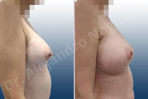Pechos asimétricos,Deformidad en mama dinámica de implantes mamarios,Contractura capsular de implantes mamarios,Calcificación de la cápsula de los implantes mamarios,Tienda de escote de implantes mamarios,Malposición de implantes mamarios desplazados,Deformidad en doble burbuja de implantes mamarios,Movimiento excesivo de implantes mamarios,Deslizamiento lateral de implantes mamarios,Implantes mamarios excesivamente laterales,Unimama por sinmastia de implantes mamarios,Necrosis de tejidos de pechos,Pechos bizcos,Implantes mamarios bizcos,Cicatrices desplazadas malposicionadas,Pechos vacíos,Pechos laterales,Pechos estrechos,Tórax prominente,Pechos pequeños,Escote ancho de implantes de pechos excesivamente separados,Escote ancho de pechos excesivamente separados,Implantes mamarios demasiado anchos,Forma anatómica,Capsulectomía,Incisión a medida,Revisión escisional de cicatriz,Incisión submamaria,Bolsillo en plano subfascial - photo 8