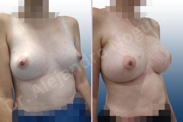 Pechos asimétricos,Deformidad en mama dinámica de implantes mamarios,Contractura capsular de implantes mamarios,Calcificación de la cápsula de los implantes mamarios,Tienda de escote de implantes mamarios,Malposición de implantes mamarios desplazados,Deformidad en doble burbuja de implantes mamarios,Movimiento excesivo de implantes mamarios,Deslizamiento lateral de implantes mamarios,Implantes mamarios excesivamente laterales,Unimama por sinmastia de implantes mamarios,Necrosis de tejidos de pechos,Pechos bizcos,Implantes mamarios bizcos,Cicatrices desplazadas malposicionadas,Pechos vacíos,Pechos laterales,Pechos estrechos,Tórax prominente,Pechos pequeños,Escote ancho de implantes de pechos excesivamente separados,Escote ancho de pechos excesivamente separados,Implantes mamarios demasiado anchos,Forma anatómica,Capsulectomía,Incisión a medida,Revisión escisional de cicatriz,Incisión submamaria,Bolsillo en plano subfascial - photo 9