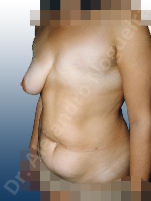 Pechos asimétricos,Mastectomía de pérdida de pecho,Reconstrucción de complejo areola pezón,Reconstrucción mamaria con colgajo TRAM unilateral,Injerto libre de complejo areola pezón