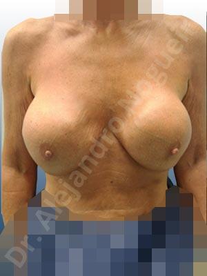 Pechos asimétricos,Contractura capsular de implantes mamarios,Calcificación de la cápsula de los implantes mamarios,Malposición de implantes mamarios desplazados,Implantes mamarios excesivamente altos,Ondulaciones o rippling de implantes mamarios,Visibilidad palpabilidad de implantes mamarios,Implantes mamarios rotos,Implantes mamarios bizcos,Pechos vacíos,Pechos moderadamente caídos descolgados,Mamas delgadas,Pechos pequeños,Escote ancho de implantes de pechos excesivamente separados,Implantes mamarios demasiado estrechos,Efecto en cascada de agua de implantes mamarios,Forma anatómica,Incisión en ancla,Capsulectomía,Bolsillo en plano subfascial,Pedículo superior