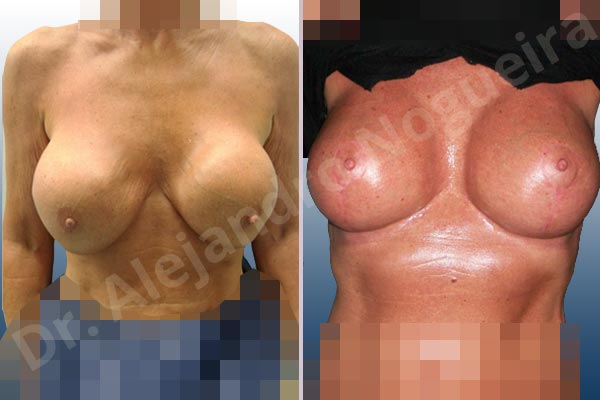 Pechos asimétricos,Contractura capsular de implantes mamarios,Calcificación de la cápsula de los implantes mamarios,Malposición de implantes mamarios desplazados,Implantes mamarios excesivamente altos,Ondulaciones o rippling de implantes mamarios,Visibilidad palpabilidad de implantes mamarios,Implantes mamarios rotos,Implantes mamarios bizcos,Pechos vacíos,Pechos moderadamente caídos descolgados,Mamas delgadas,Pechos pequeños,Escote ancho de implantes de pechos excesivamente separados,Implantes mamarios demasiado estrechos,Efecto en cascada de agua de implantes mamarios,Forma anatómica,Incisión en ancla,Capsulectomía,Bolsillo en plano subfascial,Pedículo superior - photo 1