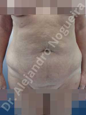 Abdomen descolgado,Abdomen con debilidad muscular,Abdominoplastia estándar