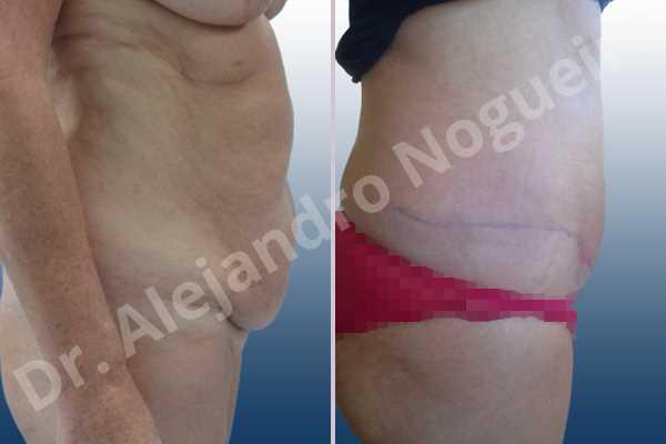 Abdomen descolgado,Abdomen con debilidad muscular,Abdominoplastia estándar - photo 4