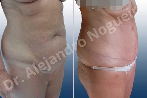 Abdomen descolgado,Abdomen con debilidad muscular,Abdominoplastia estándar - photo 5