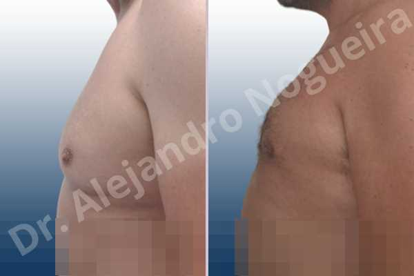 Ginecomastia,Mastectomía subcutánea,Incisión transareolar - photo 2