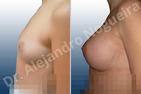 Pechos asimétricos,Pechos bizcos,Pechos laterales,Pechos pequeños,Escote ancho de pechos excesivamente separados,Forma redonda,Incisión hemiperiareolar inferior,Bolsillo en plano subfascial - photo 2