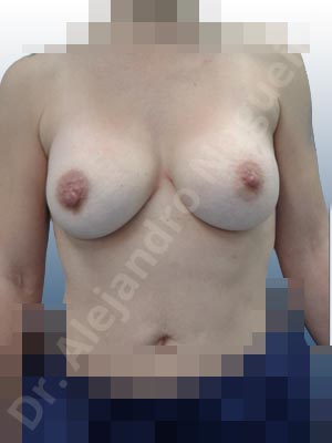 Pechos asimétricos,Pseudoptosis por bottoming out o desfondamiento de implantes mamarios,Movimiento excesivo de implantes mamarios,Deslizamiento lateral de implantes mamarios,Pechos vacíos,Pechos levemente caídos descolgados,Pechos ligeramente caídos descolgados,Pechos pequeños,Escote ancho de implantes de pechos excesivamente separados,Implantes mamarios demasiado estrechos,Forma anatómica,Capsulectomía,Tamaño extra grande,Incisión hemiperiareolar inferior,Bolsillo en plano subfascial