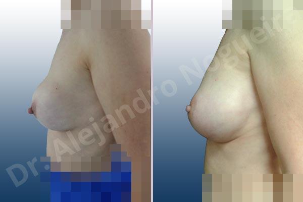 Pechos asimétricos,Contractura capsular de implantes mamarios,Calcificación de la cápsula de los implantes mamarios,Malposición de implantes mamarios desplazados,Movimiento excesivo de implantes mamarios,Ondulaciones o rippling de implantes mamarios,Visibilidad palpabilidad de implantes mamarios,Implantes mamarios rotos,Pechos vacíos,Pechos levemente caídos descolgados,Mamas péndulas,Mamas delgadas,Pechos ligeramente caídos descolgados,Pechos pequeños,Escote ancho de implantes de pechos excesivamente separados,Escote ancho de pechos excesivamente separados,Implantes mamarios demasiado estrechos,Forma anatómica,Capsulectomía,Incisión hemiperiareolar inferior,Bolsillo en plano subfascial - photo 2