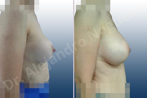 Pechos asimétricos,Contractura capsular de implantes mamarios,Calcificación de la cápsula de los implantes mamarios,Malposición de implantes mamarios desplazados,Movimiento excesivo de implantes mamarios,Ondulaciones o rippling de implantes mamarios,Visibilidad palpabilidad de implantes mamarios,Implantes mamarios rotos,Pechos vacíos,Pechos levemente caídos descolgados,Mamas péndulas,Mamas delgadas,Pechos ligeramente caídos descolgados,Pechos pequeños,Escote ancho de implantes de pechos excesivamente separados,Escote ancho de pechos excesivamente separados,Implantes mamarios demasiado estrechos,Forma anatómica,Capsulectomía,Incisión hemiperiareolar inferior,Bolsillo en plano subfascial - photo 4