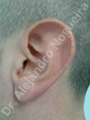 Lóbulos auriculares grandes,Orejas grandes,Lóbulos auriculares prominentes,Orejas prominentes,Resección auricular cefálica en flor de lys,Resección de lóbulo auricular en L