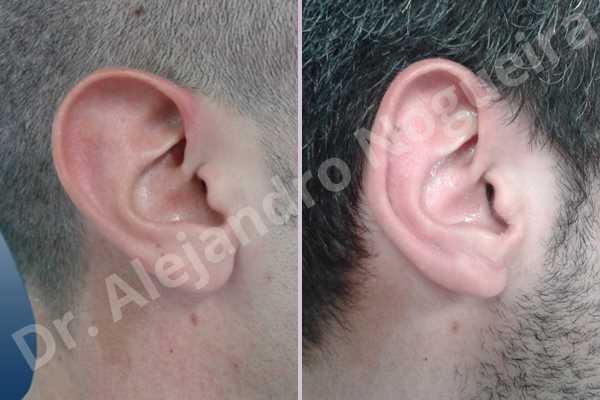Lóbulos auriculares grandes,Orejas grandes,Lóbulos auriculares prominentes,Orejas prominentes,Resección auricular cefálica en flor de lys,Resección de lóbulo auricular en L - photo 4