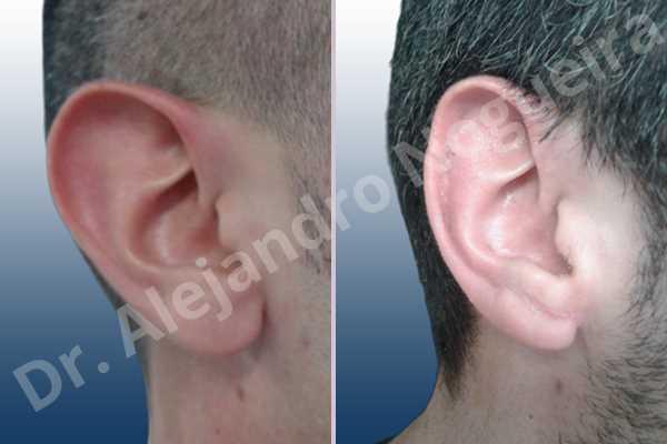 Lóbulos auriculares grandes,Orejas grandes,Lóbulos auriculares prominentes,Orejas prominentes,Resección auricular cefálica en flor de lys,Resección de lóbulo auricular en L - photo 5