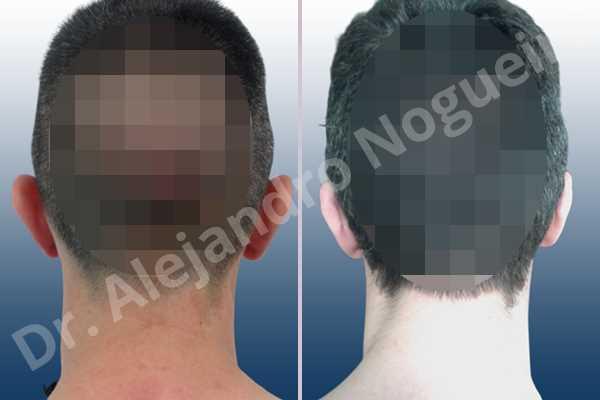 Lóbulos auriculares grandes,Orejas grandes,Lóbulos auriculares prominentes,Orejas prominentes,Resección auricular cefálica en flor de lys,Resección de lóbulo auricular en L - photo 6