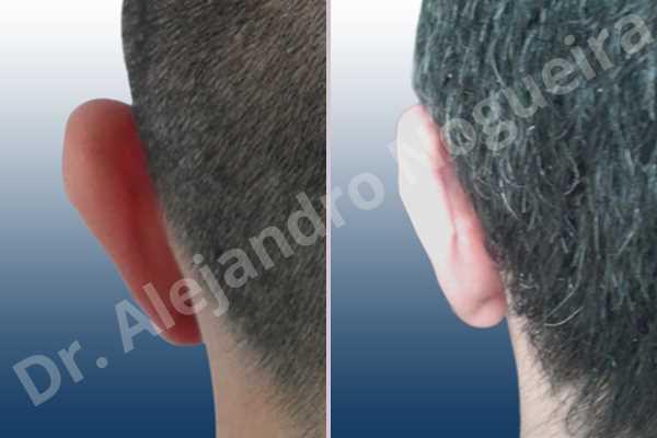 Lóbulos auriculares grandes,Orejas grandes,Lóbulos auriculares prominentes,Orejas prominentes,Resección auricular cefálica en flor de lys,Resección de lóbulo auricular en L - photo 7