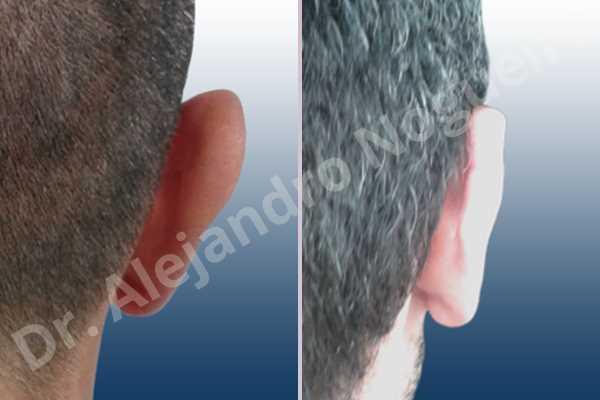 Lóbulos auriculares grandes,Orejas grandes,Lóbulos auriculares prominentes,Orejas prominentes,Resección auricular cefálica en flor de lys,Resección de lóbulo auricular en L - photo 8