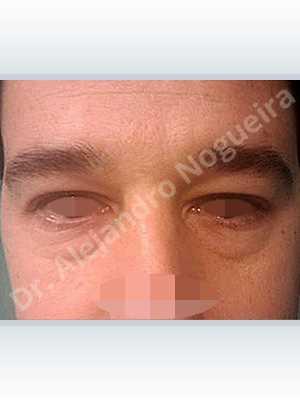 Párpados inferiores abultados,Resección de bolsas grasas en el párpado inferior,Incisión vía transconjuntival