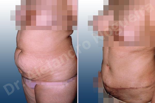 Abdomen descolgado,Abdomen con debilidad muscular,Abdominoplastia estándar - photo 2