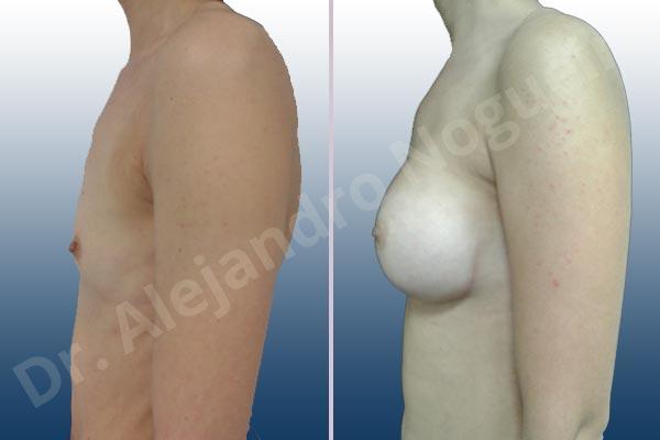 Pechos laterales,Pechos estrechos,Mamas delgadas,Pechos pequeños,Tórax hundido,Escote ancho de pechos excesivamente separados,Forma anatómica,Incisión submamaria,Bolsillo en plano subfascial - photo 2