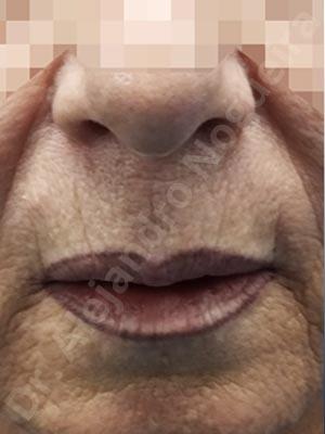 Labios caídos,Filtrum largo,Labios pequeños,Lifting de labio superior en cuernos de toro