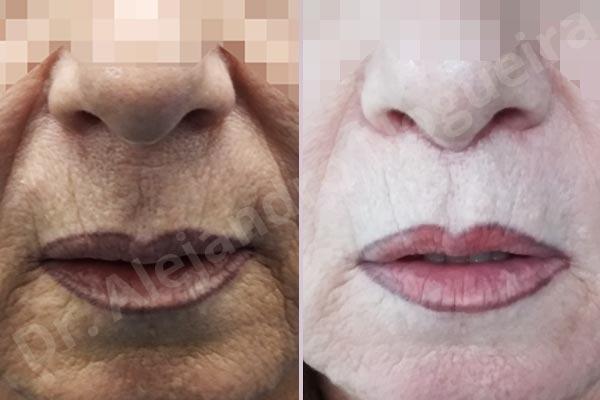 Labios caídos,Filtrum largo,Labios pequeños,Lifting de labio superior en cuernos de toro - photo 1
