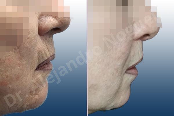 Labios caídos,Filtrum largo,Labios pequeños,Lifting de labio superior en cuernos de toro - photo 3