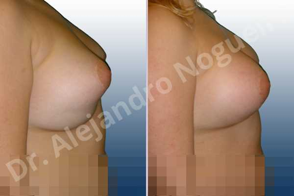 Pechos asimétricos,Deformidad en mama dinámica de implantes mamarios,Pseudoptosis por bottoming out o desfondamiento de implantes mamarios,Malposición de implantes mamarios desplazados,Deformidad en doble burbuja de implantes mamarios,Movimiento excesivo de implantes mamarios,Deslizamiento lateral de implantes mamarios,Implantes mamarios excesivamente laterales,Implantes mamarios bizcos,Pechos laterales,Pechos estrechos,Tórax prominente,Escote ancho de implantes de pechos excesivamente separados,Escote ancho de pechos excesivamente separados,Pechos tuberosos,Efecto en cascada de agua de implantes mamarios,Cicatrices anchas,Capsulorrafia sujetador interno,Incisión hemiperiareolar inferior,Forma redonda,Mamoplastia tuberosa,Bolsillo en plano dual - photo 4