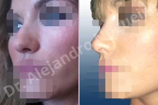 Giba dorsal,Crestas de dorso,Cartílagos alares grandes,Nariz mediterránea,Punta sobreproyectada,Dorso romboidal,Nariz de piel delgada,Incisión vía cerrada,Resección de giba dorsal,Resección cefálica de cruras laterales,Acortamiento por resección de cruras laterales,Acortamiento por resección de cruras mediales,Osteotomías de huesos nasales - photo 3