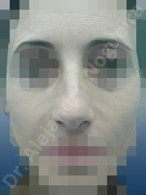 Giba dorsal,Crestas de dorso,Cartílagos alares grandes,Nariz grande,Nariz mediterránea,Punta sobreproyectada,Dorso romboidal,Nariz de piel delgada,Incisión vía cerrada,Resección de giba dorsal,Resección cefálica de cruras laterales,Acortamiento por resección de cruras laterales,Acortamiento por resección de cruras mediales,Osteotomías de huesos nasales