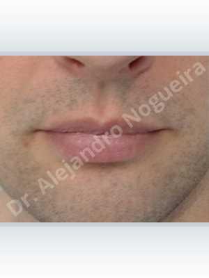 Labios pequeños,Labios transgénero,Relleno con colágeno dérmico autólogo de labio superior