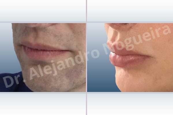 Labios pequeños,Labios transgénero,Relleno con colágeno dérmico autólogo de labio superior - photo 4