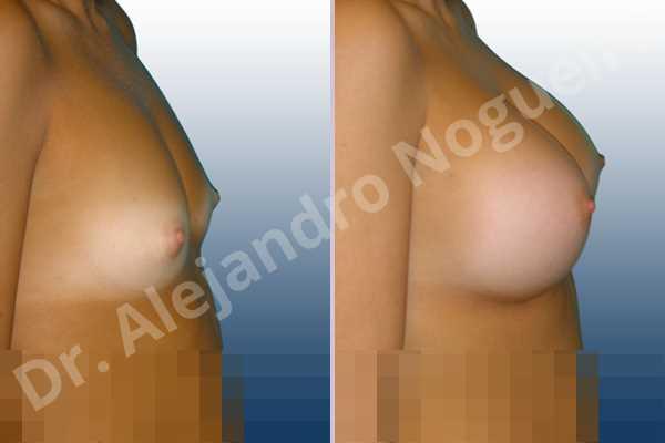 Pechos bizcos,Pechos estrechos,Pechos pequeños,Forma anatómica,Incisión submamaria,Bolsillo en plano subfascial - photo 4