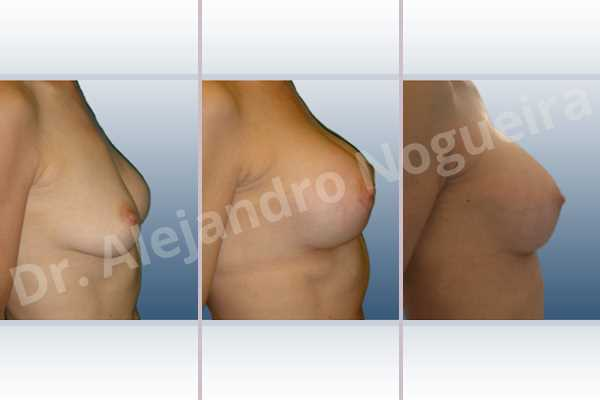 Pechos asimétricos,Implantes mamarios excesivamente altos,Implantes mamarios rotos,Pechos vacíos,Pechos laterales,Pechos levemente caídos descolgados,Pechos ligeramente caídos descolgados,Pechos pequeños,Escote ancho de implantes de pechos excesivamente separados,Escote ancho de pechos excesivamente separados,Efecto en cascada de agua de implantes mamarios,Capsulectomía,Bolsillo en plano dual,Incisión hemiperiareolar inferior,Forma redonda - photo 4