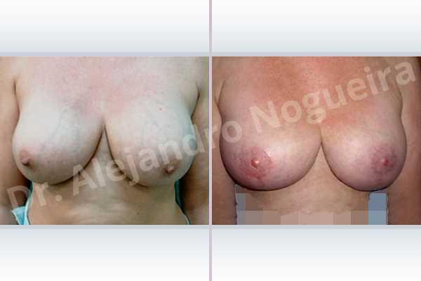 Pechos asimétricos,Contractura capsular de implantes mamarios,Calcificación de la cápsula de los implantes mamarios,Malposición de implantes mamarios desplazados,Movimiento excesivo de implantes mamarios,Deslizamiento lateral de implantes mamarios,Implantes mamarios excesivamente laterales,Pseudoptosis por desfondamiento de tejido mamario,Implantes mamarios rotos,Pechos bizcos,Pechos vacíos,Pechos extremadamente caídos descolgados,Elevación de pecho fallida,Pechos laterales,Pechos moderadamente grandes,Mamas péndulas,Pechos severamente grandes,Pechos severamente caídos descolgados,Pechos anchos,Forma anatómica,Incisión en ancla,Capsulectomía,Tamaño extra grande,Injerto libre de complejo areola pezón,Bolsillo en plano subfascial - photo 1