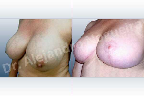 Pechos asimétricos,Contractura capsular de implantes mamarios,Calcificación de la cápsula de los implantes mamarios,Malposición de implantes mamarios desplazados,Movimiento excesivo de implantes mamarios,Deslizamiento lateral de implantes mamarios,Implantes mamarios excesivamente laterales,Pseudoptosis por desfondamiento de tejido mamario,Implantes mamarios rotos,Pechos bizcos,Pechos vacíos,Pechos extremadamente caídos descolgados,Elevación de pecho fallida,Pechos laterales,Pechos moderadamente grandes,Mamas péndulas,Pechos severamente grandes,Pechos severamente caídos descolgados,Pechos anchos,Forma anatómica,Incisión en ancla,Capsulectomía,Tamaño extra grande,Injerto libre de complejo areola pezón,Bolsillo en plano subfascial - photo 3