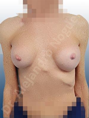 Calcificación de la cápsula de los implantes mamarios,Ondulaciones o rippling de implantes mamarios,Visibilidad palpabilidad de implantes mamarios,Implantes mamarios rotos,Pechos bizcos,Pechos vacíos,Pechos laterales,Mamas delgadas,Pechos pequeños,Tórax hundido,Escote ancho de pechos excesivamente separados,Pechos anchos,Forma anatómica,Capsulectomía,Incisión circumareolar,Tamaño extra grande,Bolsillo en plano subfascial
