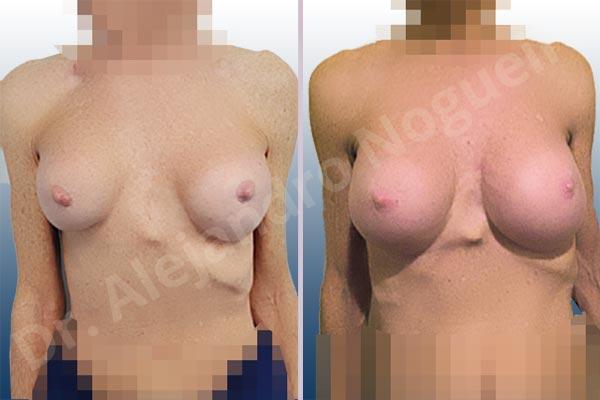Calcificación de la cápsula de los implantes mamarios,Ondulaciones o rippling de implantes mamarios,Visibilidad palpabilidad de implantes mamarios,Implantes mamarios rotos,Pechos bizcos,Pechos vacíos,Pechos laterales,Mamas delgadas,Pechos pequeños,Tórax hundido,Escote ancho de pechos excesivamente separados,Pechos anchos,Forma anatómica,Capsulectomía,Incisión circumareolar,Tamaño extra grande,Bolsillo en plano subfascial - photo 1