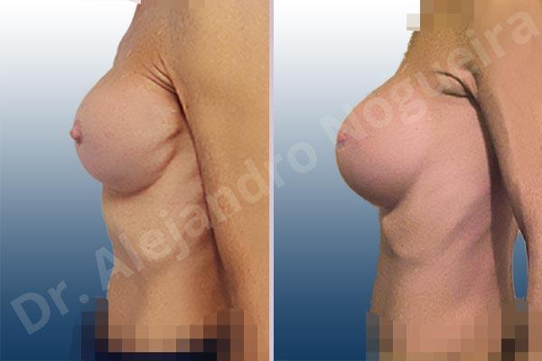 Calcificación de la cápsula de los implantes mamarios,Ondulaciones o rippling de implantes mamarios,Visibilidad palpabilidad de implantes mamarios,Implantes mamarios rotos,Pechos bizcos,Pechos vacíos,Pechos laterales,Mamas delgadas,Pechos pequeños,Tórax hundido,Escote ancho de pechos excesivamente separados,Pechos anchos,Forma anatómica,Capsulectomía,Incisión circumareolar,Tamaño extra grande,Bolsillo en plano subfascial - photo 2