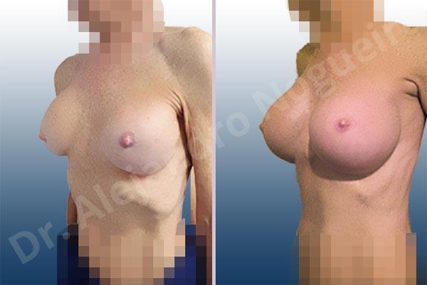 Calcificación de la cápsula de los implantes mamarios,Ondulaciones o rippling de implantes mamarios,Visibilidad palpabilidad de implantes mamarios,Implantes mamarios rotos,Pechos bizcos,Pechos vacíos,Pechos laterales,Mamas delgadas,Pechos pequeños,Tórax hundido,Escote ancho de pechos excesivamente separados,Pechos anchos,Forma anatómica,Capsulectomía,Incisión circumareolar,Tamaño extra grande,Bolsillo en plano subfascial - photo 3