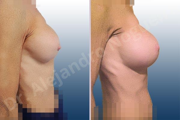 Calcificación de la cápsula de los implantes mamarios,Ondulaciones o rippling de implantes mamarios,Visibilidad palpabilidad de implantes mamarios,Implantes mamarios rotos,Pechos bizcos,Pechos vacíos,Pechos laterales,Mamas delgadas,Pechos pequeños,Tórax hundido,Escote ancho de pechos excesivamente separados,Pechos anchos,Forma anatómica,Capsulectomía,Incisión circumareolar,Tamaño extra grande,Bolsillo en plano subfascial - photo 4