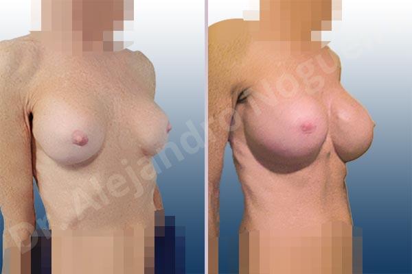Calcificación de la cápsula de los implantes mamarios,Ondulaciones o rippling de implantes mamarios,Visibilidad palpabilidad de implantes mamarios,Implantes mamarios rotos,Pechos bizcos,Pechos vacíos,Pechos laterales,Mamas delgadas,Pechos pequeños,Tórax hundido,Escote ancho de pechos excesivamente separados,Pechos anchos,Forma anatómica,Capsulectomía,Incisión circumareolar,Tamaño extra grande,Bolsillo en plano subfascial - photo 5